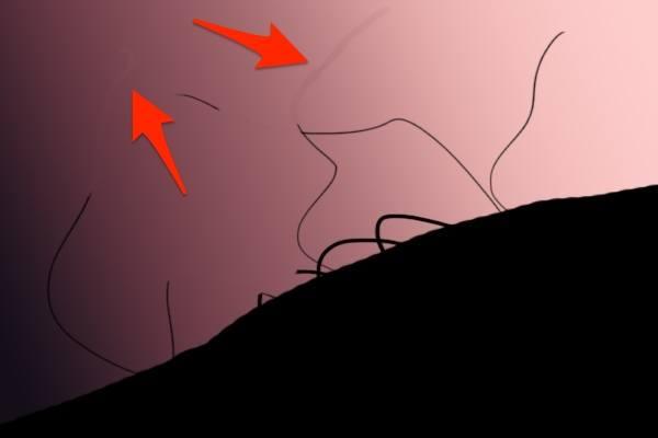 Лишние волосы